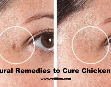 How to cure chickenpox naturally