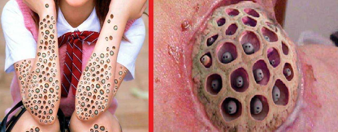 Trypophobia Disease- The Fear of Holes
