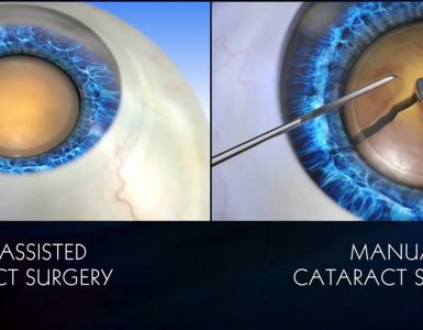 Traditional VS Laser Cataract Surgery