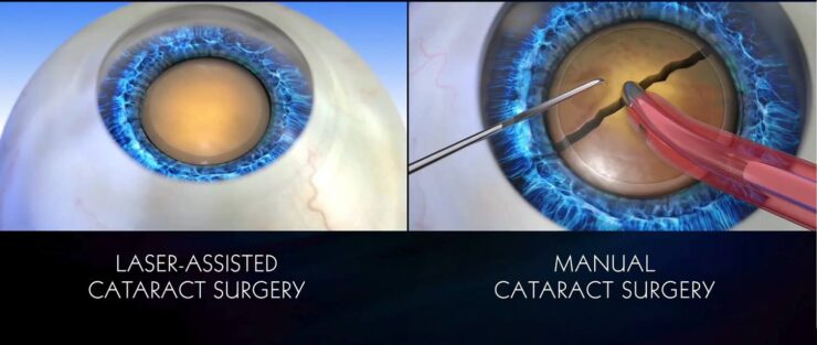 Traditional VS Laser Cataract Surgery
