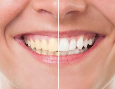 How to keep teeth healthy