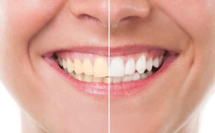 6 Things To Exclude From Your Diet For The Sake Of Your Teeth