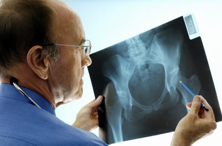 5 Orthopaedic-related Diseases you Need to Know