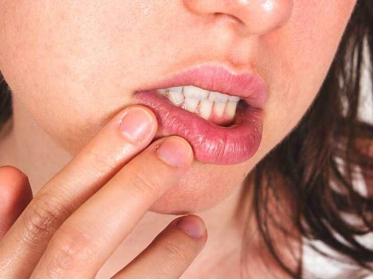 Two Sound ways to treat Cold Sores
