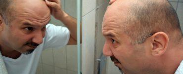 bald hair loss